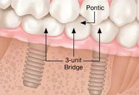 dental-implant-5